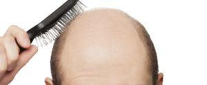 Lee más sobre el artículo Soñar con la calvicie o ser calvo